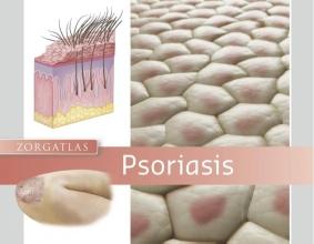 R.C.  Beljaards Zorgatlas Psoriasis
