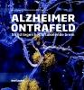 Ronald  Sahyouni, Aradhana  Verma, Jefferson  Chen,Alzheimer ontrafeld