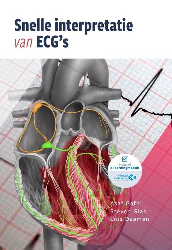 Asaf Gafni, Steven C. Glas, Lois A. Daamen,Snelle interpretatie van ECG`s