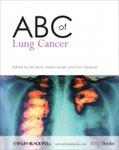 Hunt, Ian ABC of Lung Cancer