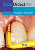 Gordon van der Avoort,AccreDidact Nazorg bij implantaten