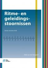 Mark van den Boogaard , Ritme- en geleidingsstoornissen
