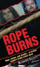 Scott, Robert Rope Burns