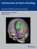 Quinones-Hinojosa, Alfredo,Controversies in Neuro-Oncology