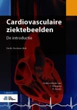 , Cardiovasculaire ziektebeelden