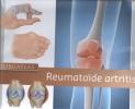 Inger  Meek ,Zorgatlas Reumatoïde artritis