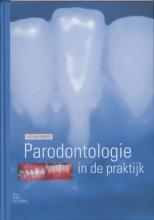 J.P. van Hoeve , Parodontologie in de Praktijk