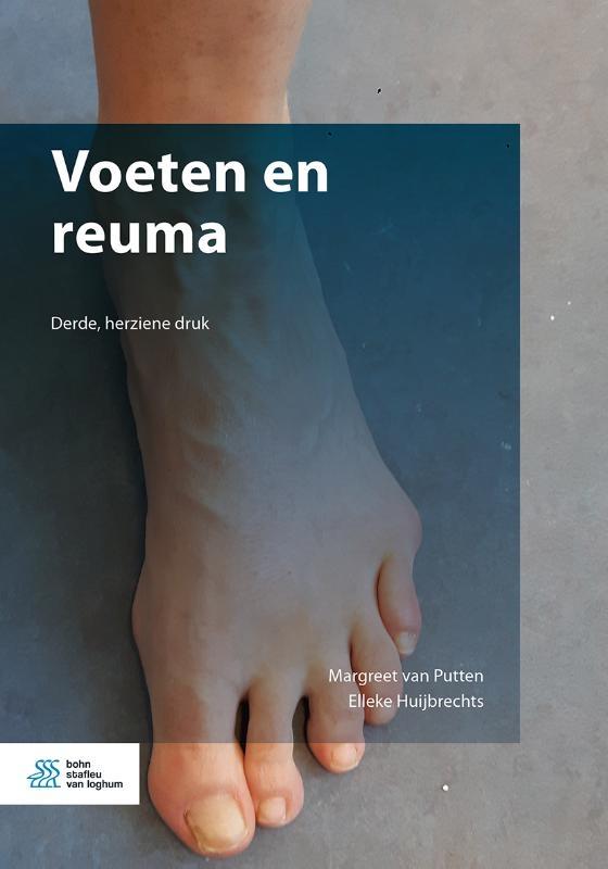 Margreet van Putten, Elleke Huijbrechts,Voeten en reuma