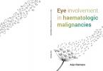 Johanna Anjo  Riemens,Eye involvement in haematological malignancies