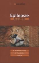 , Epilepsie