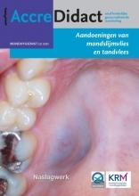 Isaäc van der Waal , Aandoeningen van mondslijmvlies en tandvlees