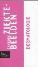 , Zakboek ziektebeelden Dermatologie