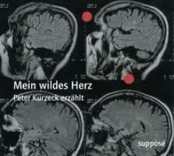 Kurzeck, Peter Mein wildes Herz