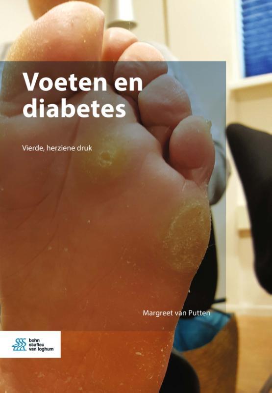 Margreet van Putten,Voeten en diabetes