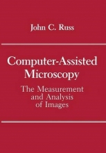 John C. Russ Computer-Assisted Microscopy