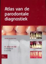 Jan Tromp Johan van Dijk  Fred Spijkervet, Atlas van de parodontale diagnostiek