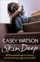 Casey Watson Skin Deep