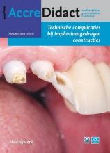 Gordon van der Avoort , Technische complicaties bij implantaatgedragen constructies