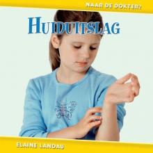 Elaine  Landau Huiduitslag