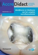 Michael Drefs , Identificeren en lokaliseren van het complete wortelkanaalstelsel