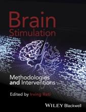 Irving Reti Brain Stimulation